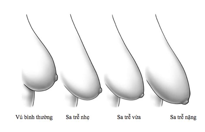 Nâng ngực chảy xệ bằng phương pháp nâng ngực Big size - chuyengianangnguc.vn