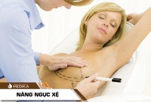 Phẫu thuật nâng ngực chảy xệ hiệu quả, săn chắc, gọn gàng - Chuyên gia nâng ngực