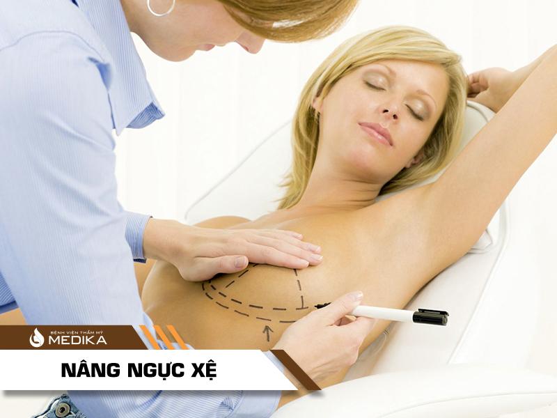 Bí quyết nâng ngực chảy xệ hiệu quả