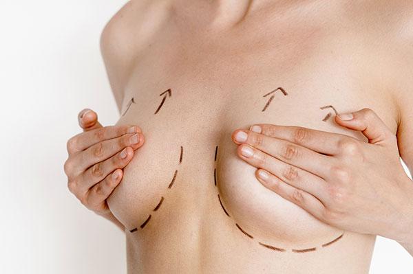 Những biến chứng có thể xảy ra khi nâng ngực - chuyengianangnguc.vn
