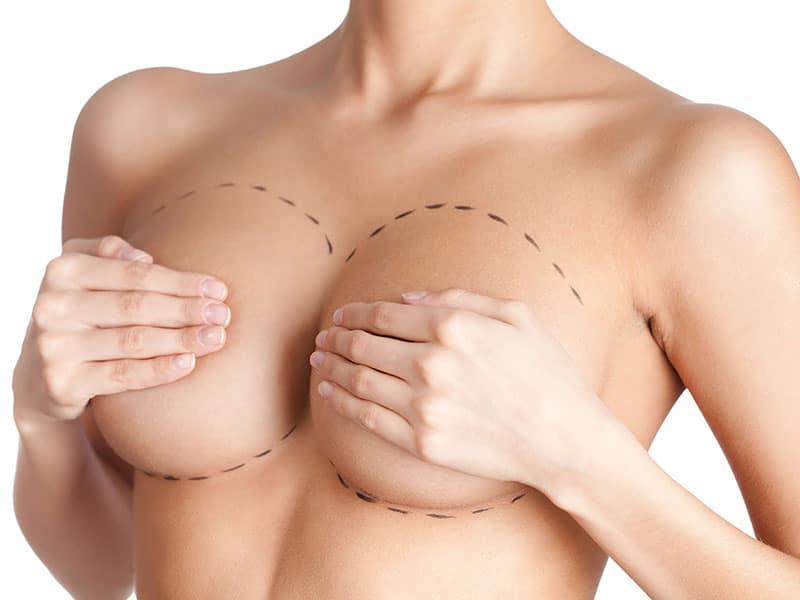 Công nghệ phẫu thuật nâng ngực nội soi tại bệnh viện thẩm mỹ MEDIKA