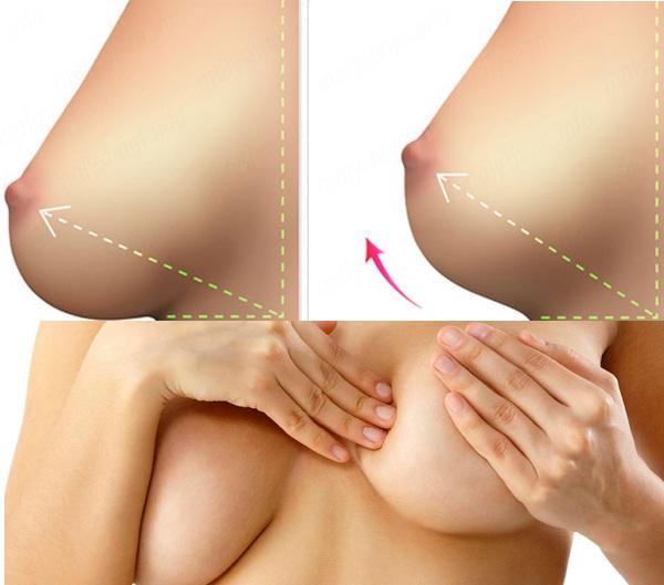 Phẫu thuật nâng ngực xệ bao nhiêu tiền?