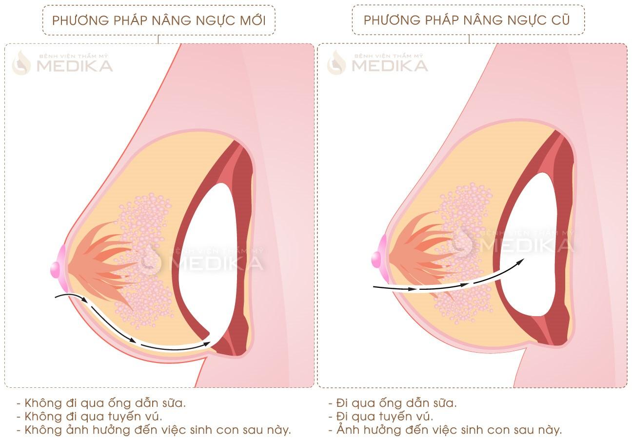 nang ngực