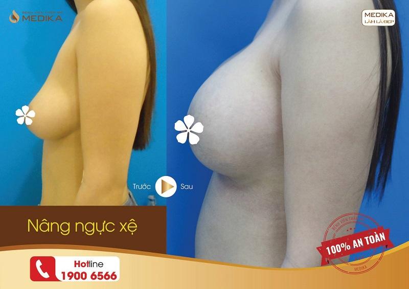 khách hàng nâng ngực