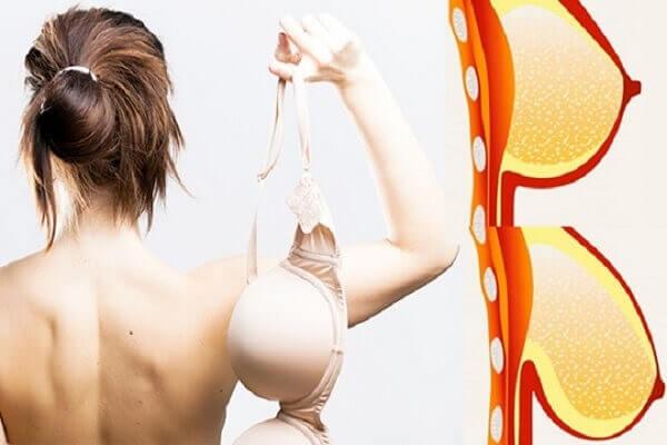 Biện pháp nâng ngực chảy xệ hiệu quả ở MEDIKA chuyên gia nâng ngực