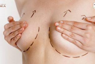 Chế độ ăn uống sau phẫu thuật nâng ngực chảy xệ ở MEDIKA chuyên gia nâng ngực