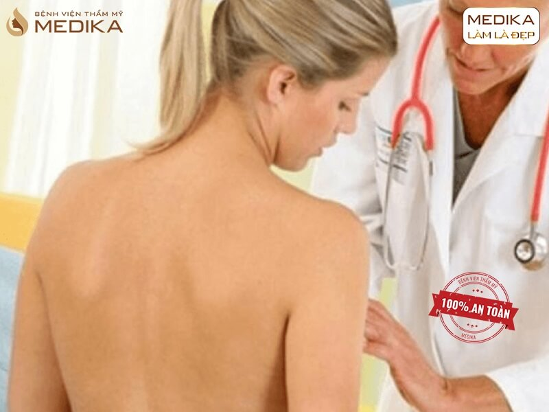 Dịch vụ phẫu thuật chỉnh sửa vòng 1 hỏng tốt nhất ở MEDIKA chuyên gia nâng ngực