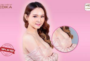 Nhân tố nào ảnh hưởng đến kết quả phẫu thuật ngực hỏng tại chuyengianangnguc.vn