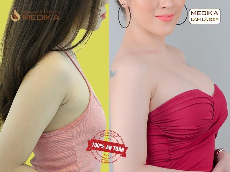 Nguyên nhân gây ra tình trạng phẫu thuật ngực hỏng và cách giải quyết ở chuyên gia nâng ngực