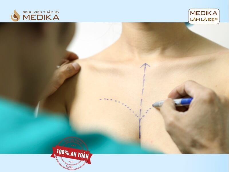 Phải làm gì khi gặp phải biến chứng phẫu thuật ngực hỏng ở MEDIKA chuyên gia nâng ngực?