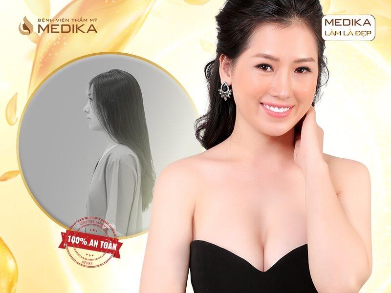 Phẫu thuật chỉnh sửa ngực hỏng và những điều có thể bạn chưa biết ở MEDIKA chuyengianangnguc.vn