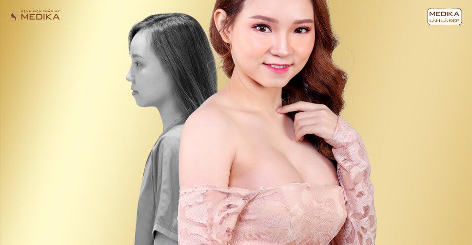 Phẫu thuật nâng ngực nội soi vĩnh viễn và bật mí từ chuyên gia - Chuyên gia nâng ngực