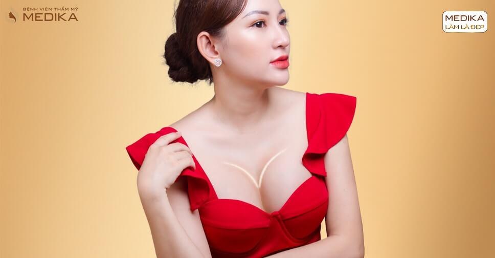 Bí quyết đánh bay ngực chảy xệ dành cho mẹ bỉm sữa - Chuyên gia nâng ngực