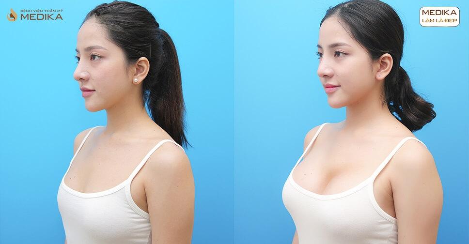 Nâng vòng 1 đẹp của cô nàng MC nổi tiếng nhất Việt Nam - Chuyên gia nâng ngực