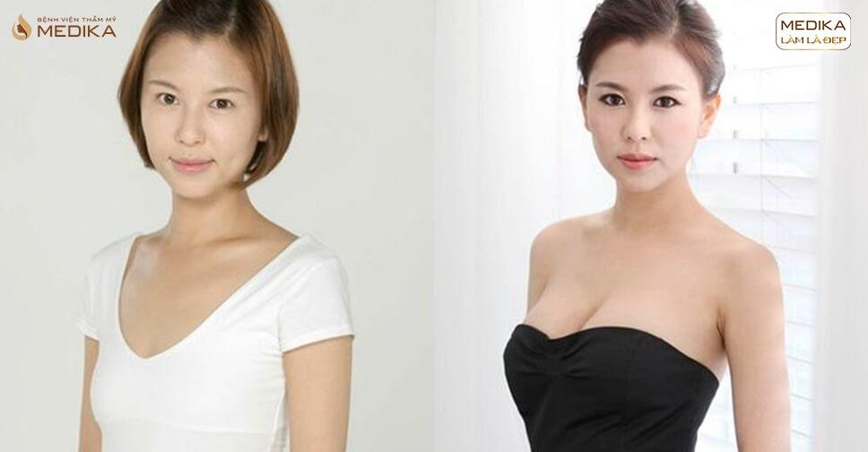Ngực xệ nỗi niềm của nhiều chị em - chuyengianangnguc.vn