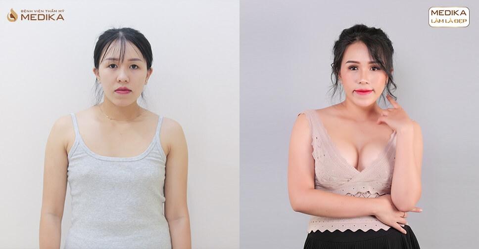 Phẫu thuật nâng ngực nội soi - Phương pháp tiên tiến nhất hiện nay - Chuyengianangnguc.vn