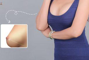 Nâng ngực chảy xệ bao lâu thì có thể phục hồi sức khỏe 100% - Chuyengianangnguc.vn