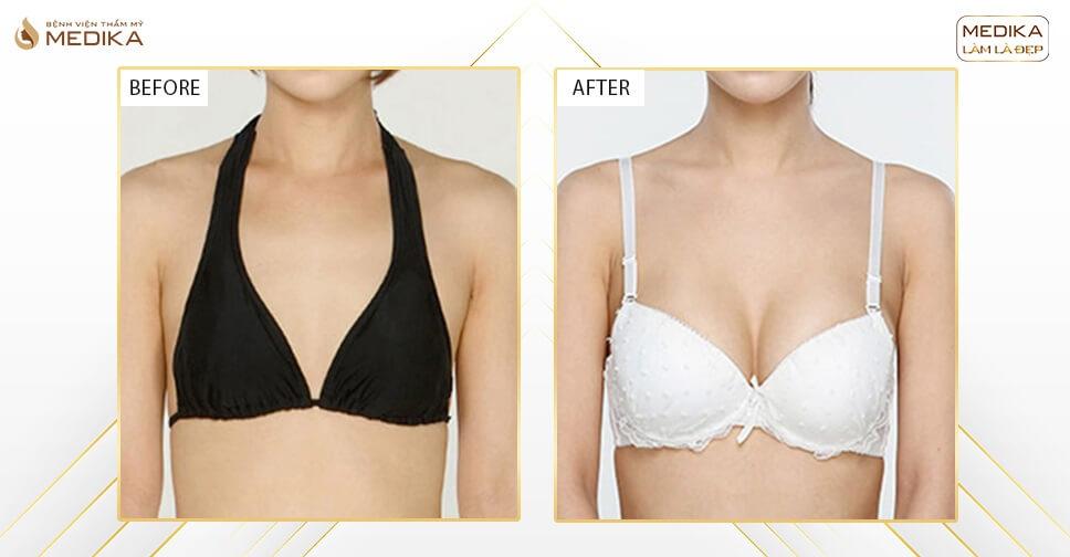 Phẫu thuật nâng vòng 1 an toàn vô cùng dễ dàng chỉ với 90 phút - Chuyên gia nâng ngực
