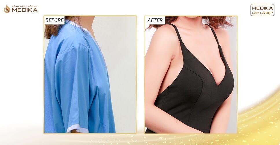 Phẫu thuật nâng vòng 1 đẹp - Công nghệ xử lý mọi vùng ngực xấu - Chuyên gia nâng ngực
