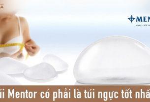 Nâng ngực túi Mentor cho mọi đối tượng - Chuyengianangnguc.vn