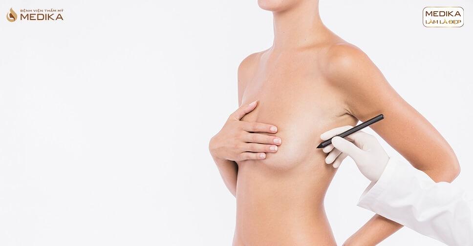 Phẫu thuật nâng ngực đẹp giúp bạn tránh xa những điều gì? - Chuyengianangnguc.vn
