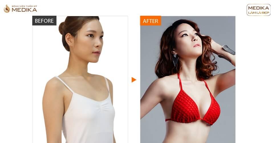 Túi Motiva - Túi ngực Motiva - Túi nâng ngực Motiva - Chuyên gia nâng ngực - Chuyengianangnguc.vn