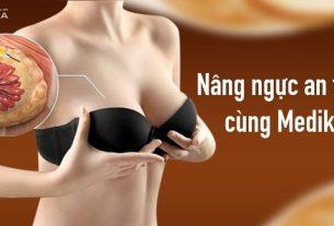 Nâng ngực an toàn - Lựa chọn hoàn hảo cùng MEDIKA - Chuyengianangnguc.vn