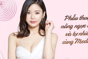 Phẫu thuật nâng ngực đẹp tự nhiên và an toàn - Chuyengianangnguc.vn