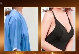 Tầm cao phẫu thuật nâng ngực nội soi - Chuyengianangnguc.vn