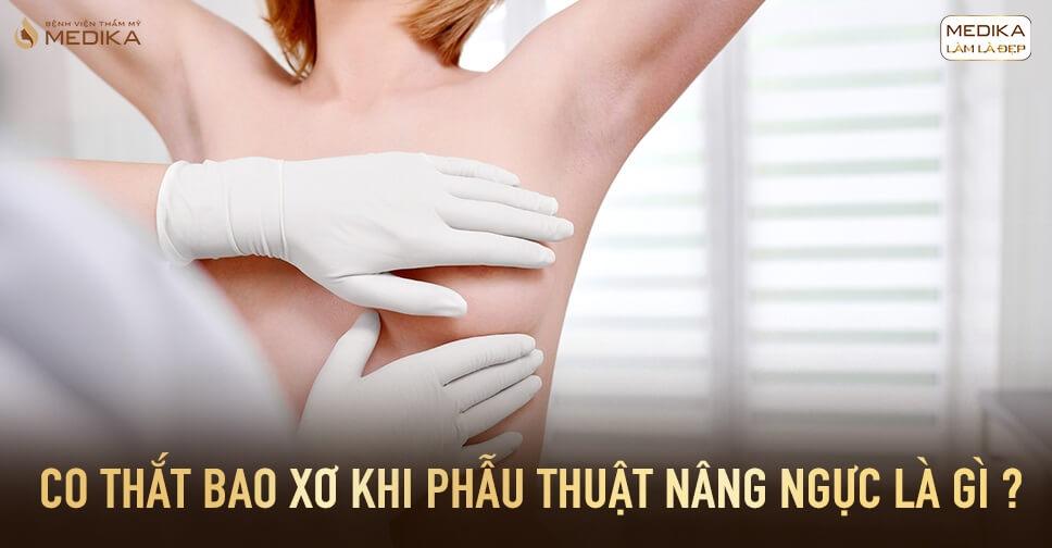 Co thắt bao xơ sau khi phẫu thuật nâng ngực là gì? - Chuyên gia nâng ngực