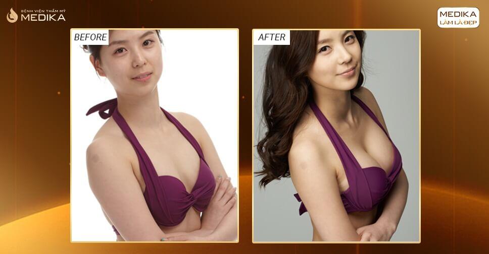 Có nên tạo khe ngực khi phẫu thuật nâng ngực đẹp? - Chuyengianangnguc.vn