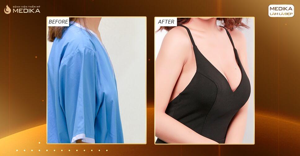 Phẫu thuật nâng vòng 1 nội soi biến hóa ngực siêu đẹp - Chuyengianangnguc.vn