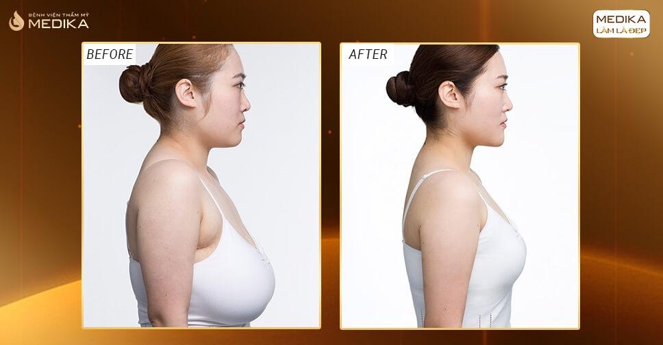 Tìm lại ngực thời son sắc bằng phương pháp nâng ngực chảy xệ - Chuyên gia nâng ngực