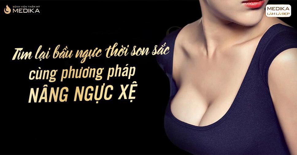 Tìm lại ngực thời son sắc bằng phương pháp nâng ngực xệ - Chuyengianangnguc.vn