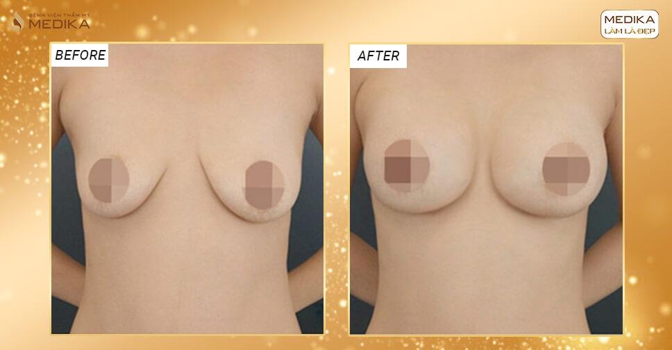 Ngực bị cao thấp có nâng ngực chảy xệ được hay không? - Chuyên gia nâng ngực