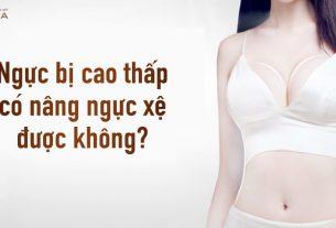 Ngực bị cao thấp có nâng ngực xệ được hay không? - Chuyên gia nâng ngực