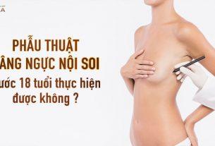 Phẫu thuật nâng ngực nội soi dưới 18 tuổi thực hiện được không? - Chuyên gia nâng ngực