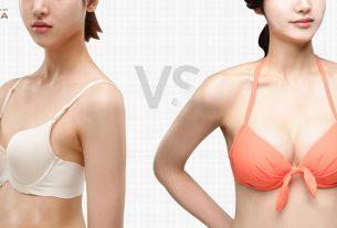 Phẫu thuật nâng ngực nội soi không phải nơi nào cũng thực hiện được - Chuyên gia nâng ngực
