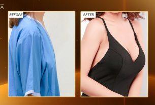 Phẫu thuật nâng ngực nội soi và những điểm cần lưu ý - Chuyên gia nâng ngực