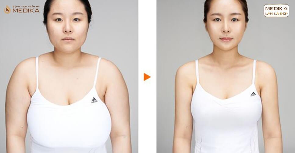 Tìm hiểu những tip nâng ngực chảy xệ tiết kiệm thời gian cho mẹ bỉm - Chuyên gia nâng ngực