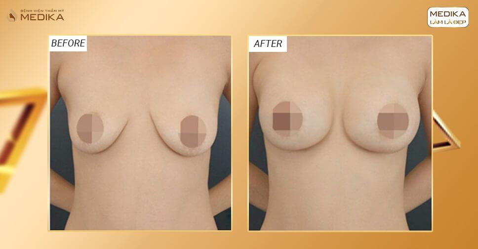 Vừa nâng ngực xệ xong ngực đã xệ trở lại vì sao? - Chuyên gia nâng ngực