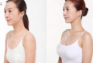 Chăm sóc thế nào sau khi nâng ngực chảy xệ tại Chuyên gia nâng ngực?