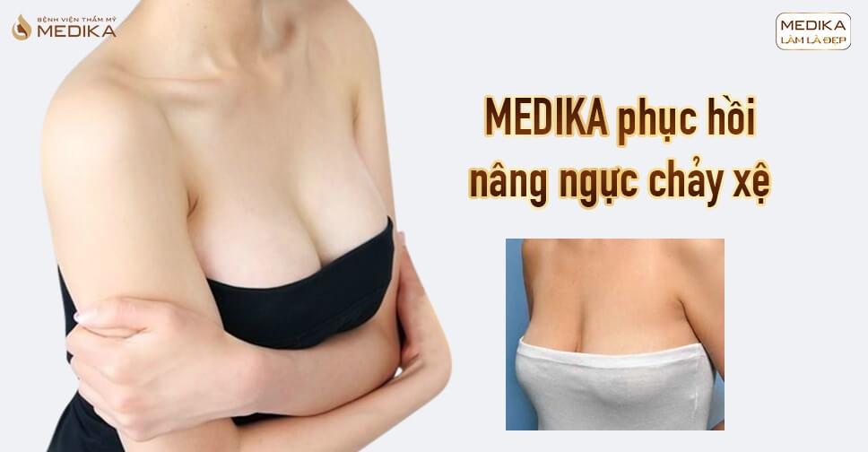 Hối hận vì thực hiện nâng ngực chảy xệ không tìm hiểu ở Chuyên gia nâng ngực