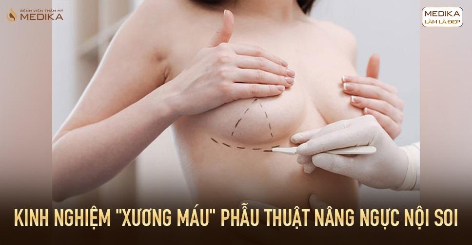 Kinh nghiệm xương máu phẫu thuật nâng ngực nội soi tại Chuyên gia nâng ngực