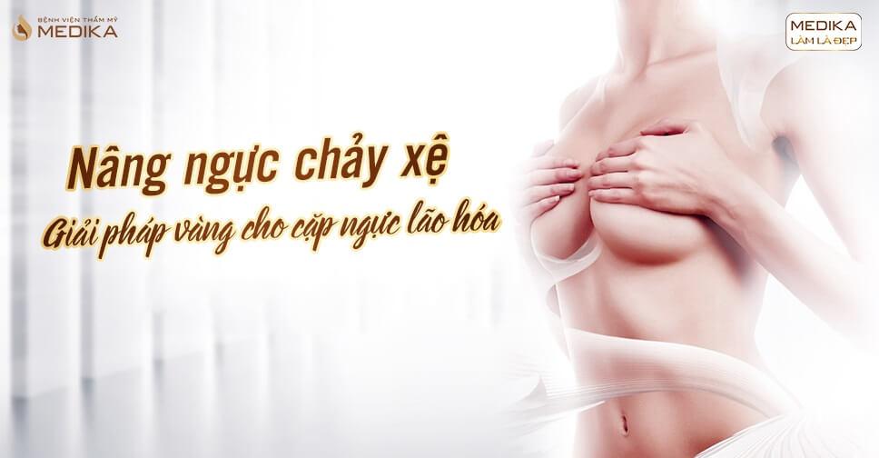 Nâng ngực chảy xệ có giữ kết quả vĩnh viễn tại Chuyên gia nâng ngực?