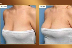 Nâng ngực chảy xệ nâng lại hạnh phúc trong tim ở Chuyên gia nâng ngực