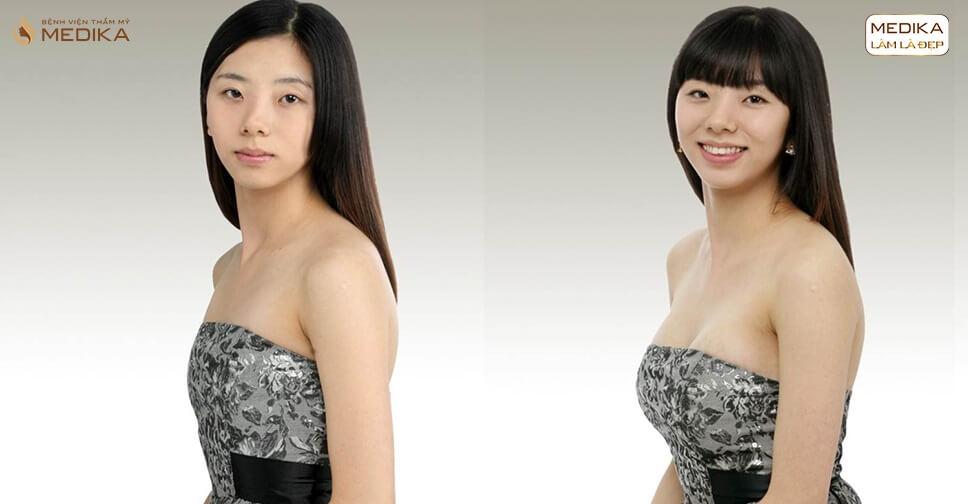Nâng vòng 1 an toàn và những nguyên tắc SỐNG CÒN bởi Chuyên gia nâng ngực