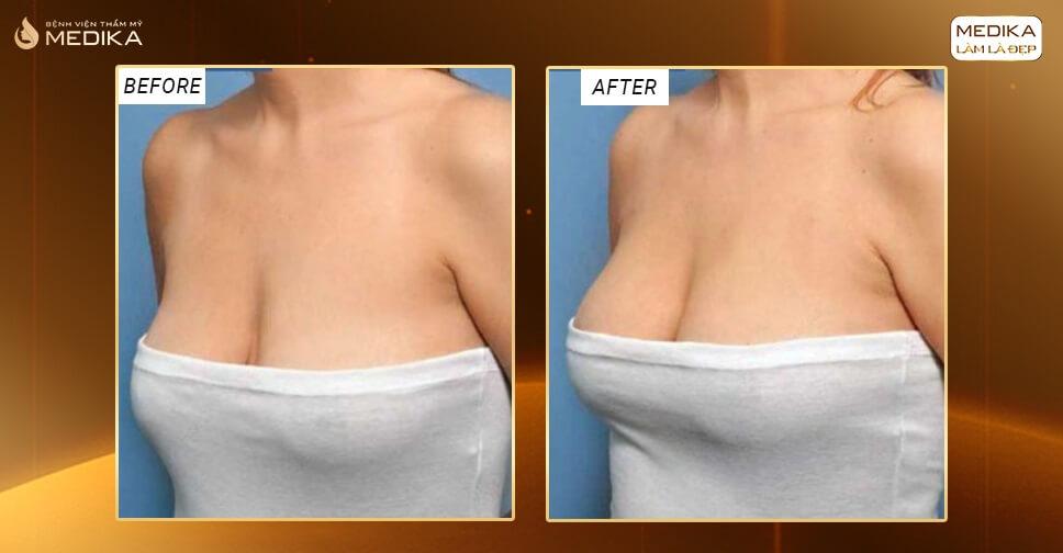 Những bí quyết vàng chăm sóc sau khi nâng ngực chảy xệ bởi Chuyên gia nâng ngực
