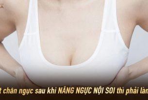 Vì sao nên phẫu thuật nâng ngực nội soi ở Bệnh viện thẩm mỹ MEDIKA - Chuyên gia nâng ngực?