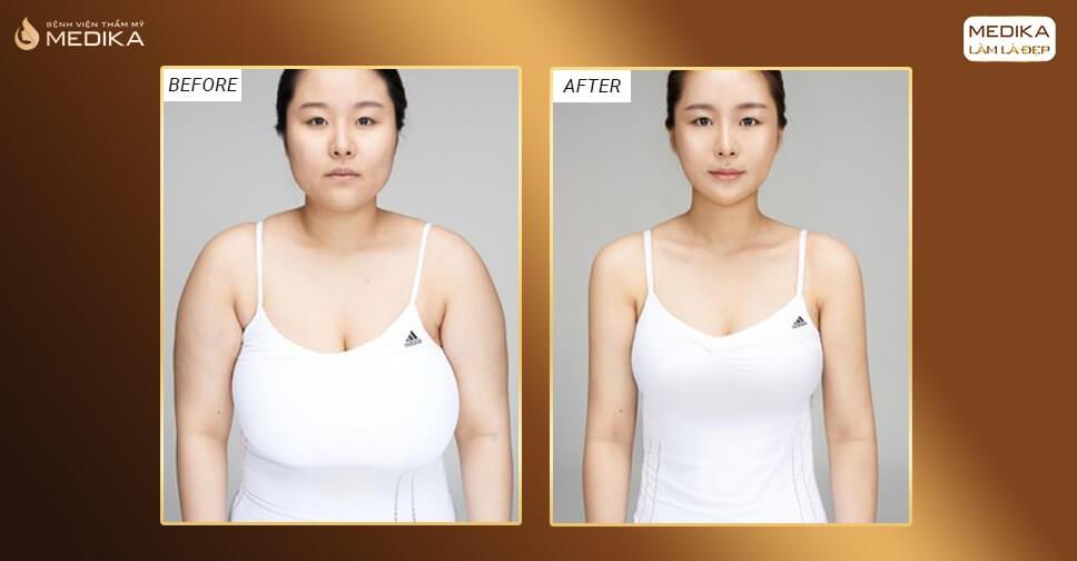 Nâng ngực chảy xệ cần nghỉ dưỡng bao lâu bởi Chuyên gia nâng ngực?